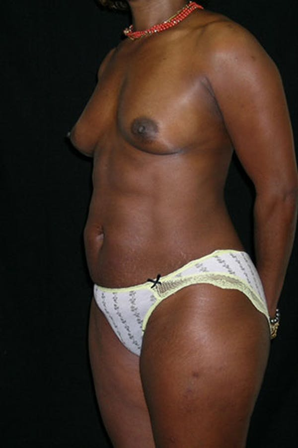 Mommy Makeover Gallery - Patient 23533980 - Image 3