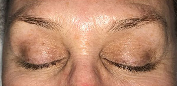 Microblading Gallery - Patient 23533976 - Image 1