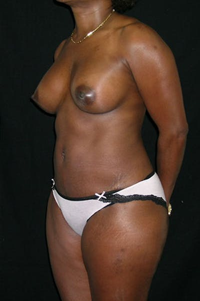Mommy Makeover Gallery - Patient 23533980 - Image 4