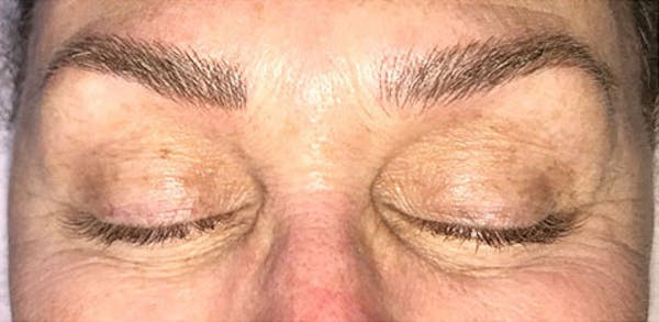 Microblading Gallery - Patient 23533976 - Image 2