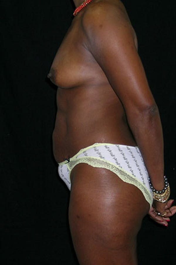 Mommy Makeover Gallery - Patient 23533980 - Image 5