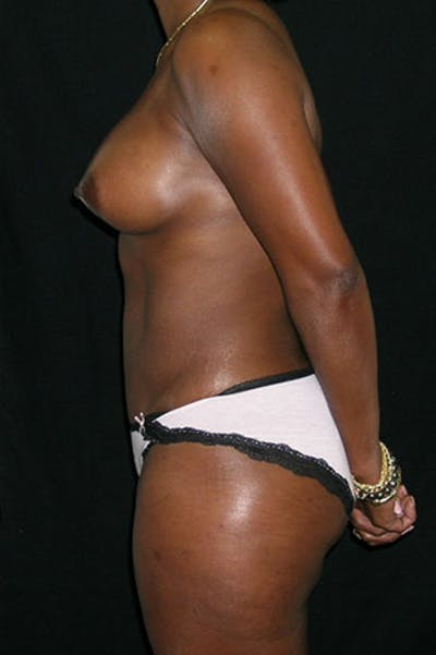 Mommy Makeover Gallery - Patient 23533980 - Image 6