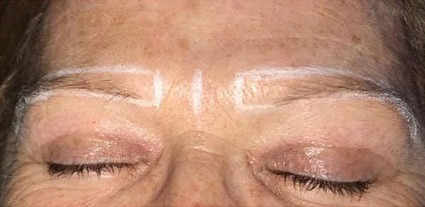 Microblading Gallery - Patient 23533978 - Image 1