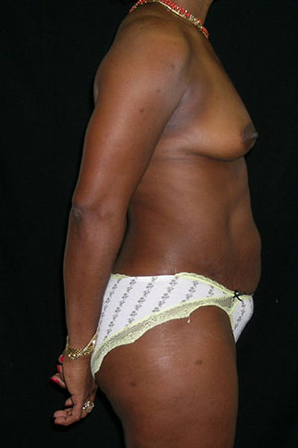 Mommy Makeover Gallery - Patient 23533980 - Image 7