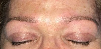 Microblading Gallery - Patient 23533978 - Image 2