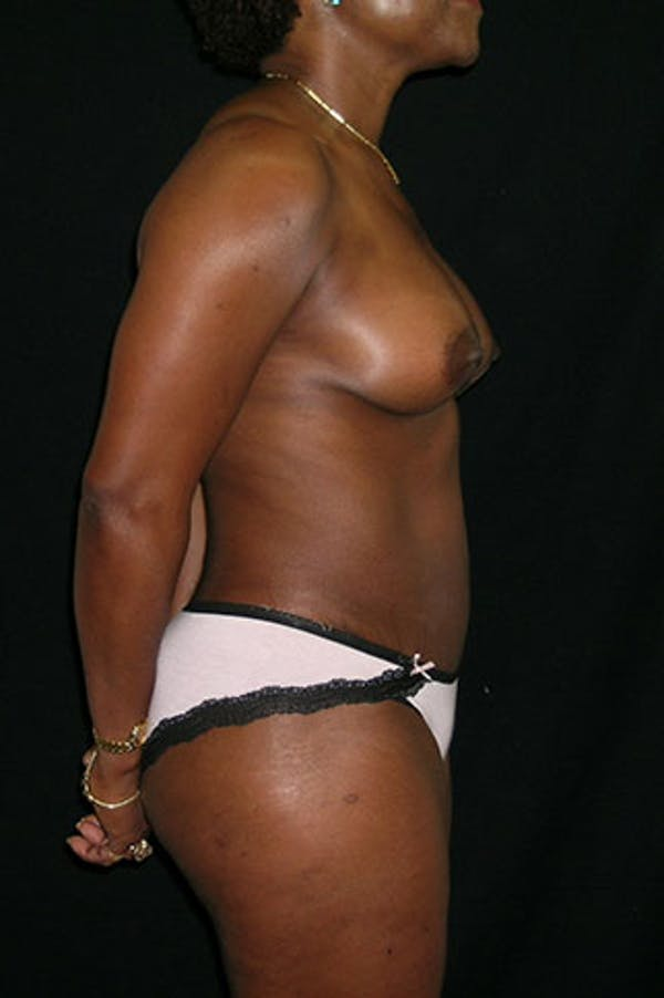 Mommy Makeover Gallery - Patient 23533980 - Image 8