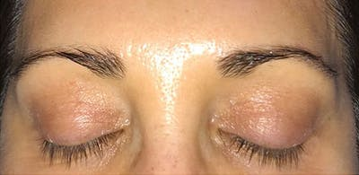 Microblading Gallery - Patient 23533979 - Image 1