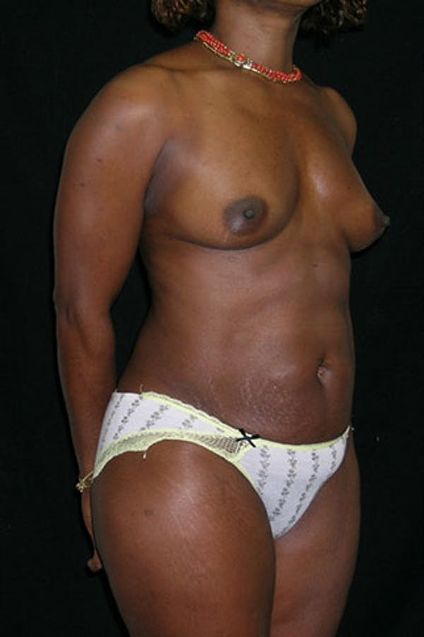 Mommy Makeover Gallery - Patient 23533980 - Image 9