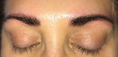 Microblading Gallery - Patient 23533979 - Image 2