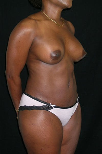 Mommy Makeover Gallery - Patient 23533980 - Image 10