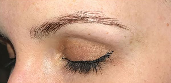 Microblading Gallery - Patient 23533981 - Image 1