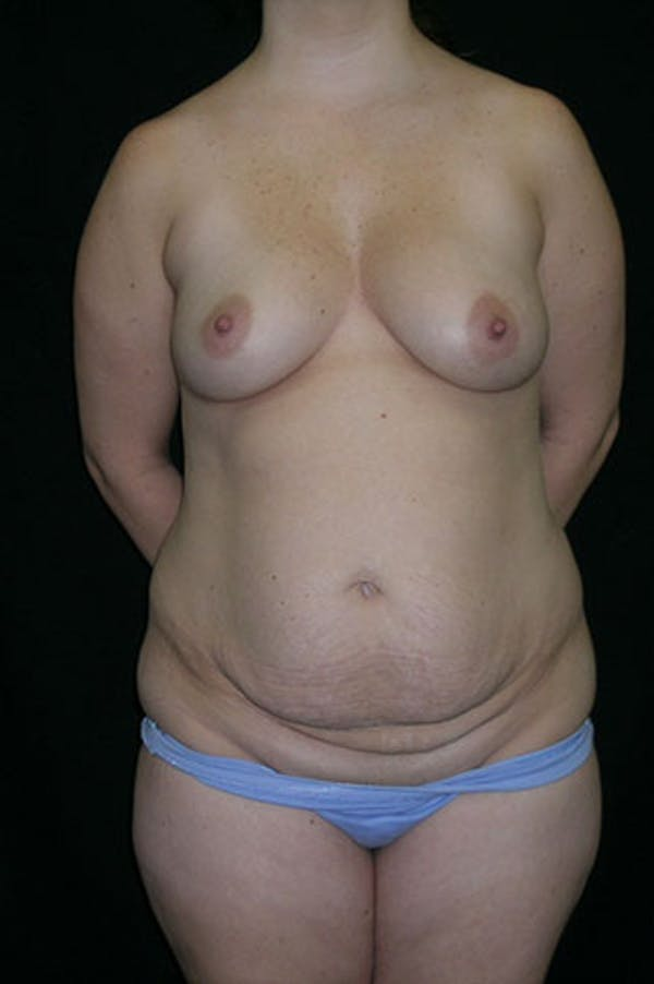 Mommy Makeover Gallery - Patient 23533991 - Image 1