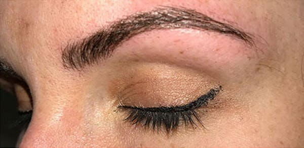 Microblading Gallery - Patient 23533981 - Image 2