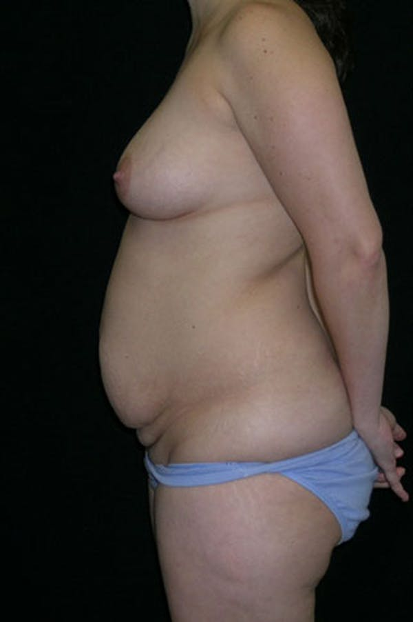Mommy Makeover Gallery - Patient 23533991 - Image 3