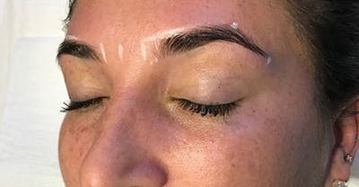 Microblading Gallery - Patient 23533982 - Image 1