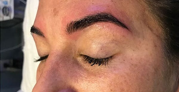 Microblading Gallery - Patient 23533982 - Image 2