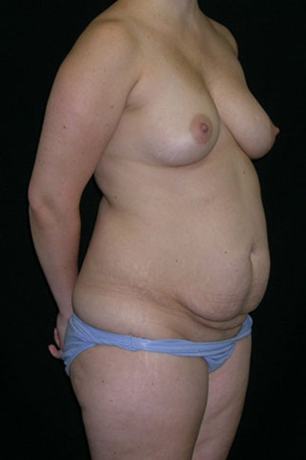 Mommy Makeover Gallery - Patient 23533991 - Image 5