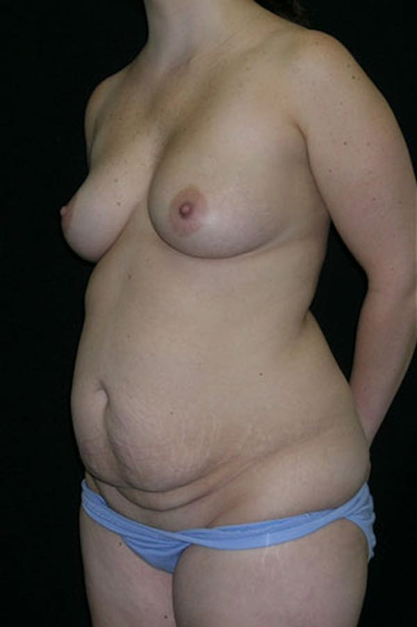 Mommy Makeover Gallery - Patient 23533991 - Image 7