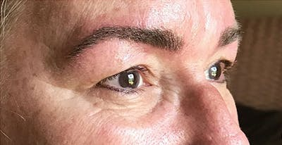 Microblading Gallery - Patient 23533985 - Image 2