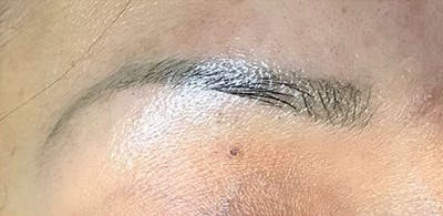Microblading Gallery - Patient 23533990 - Image 1