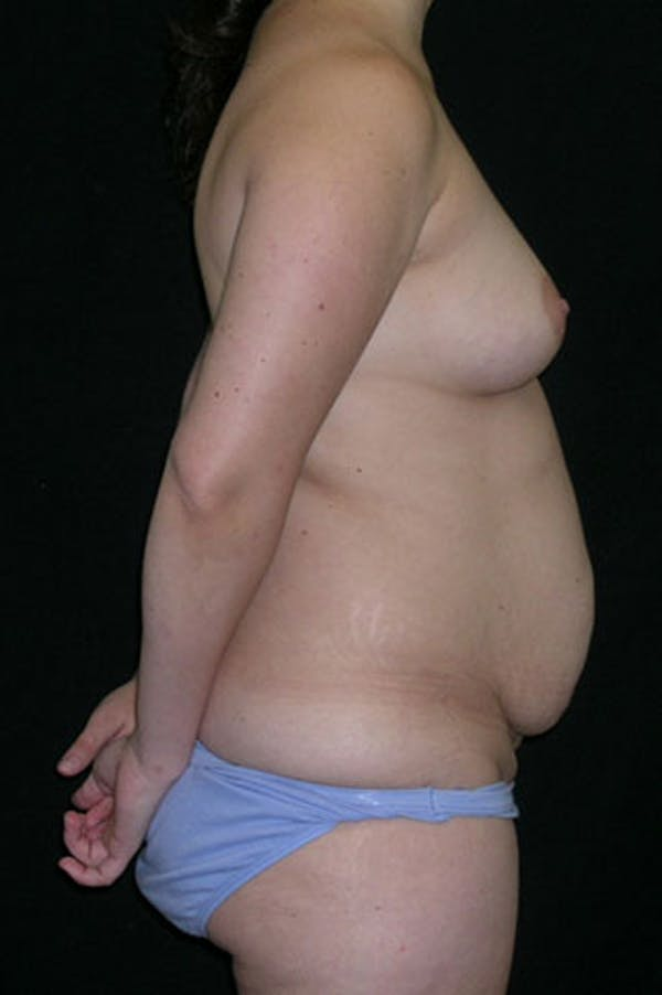 Mommy Makeover Gallery - Patient 23533991 - Image 9