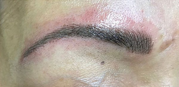 Microblading Gallery - Patient 23533990 - Image 2