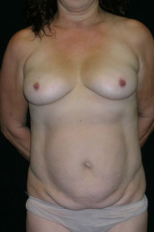Mommy Makeover Gallery - Patient 23533994 - Image 1