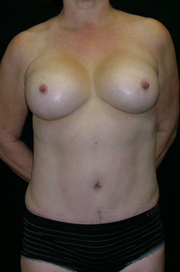 Mommy Makeover Gallery - Patient 23533994 - Image 2