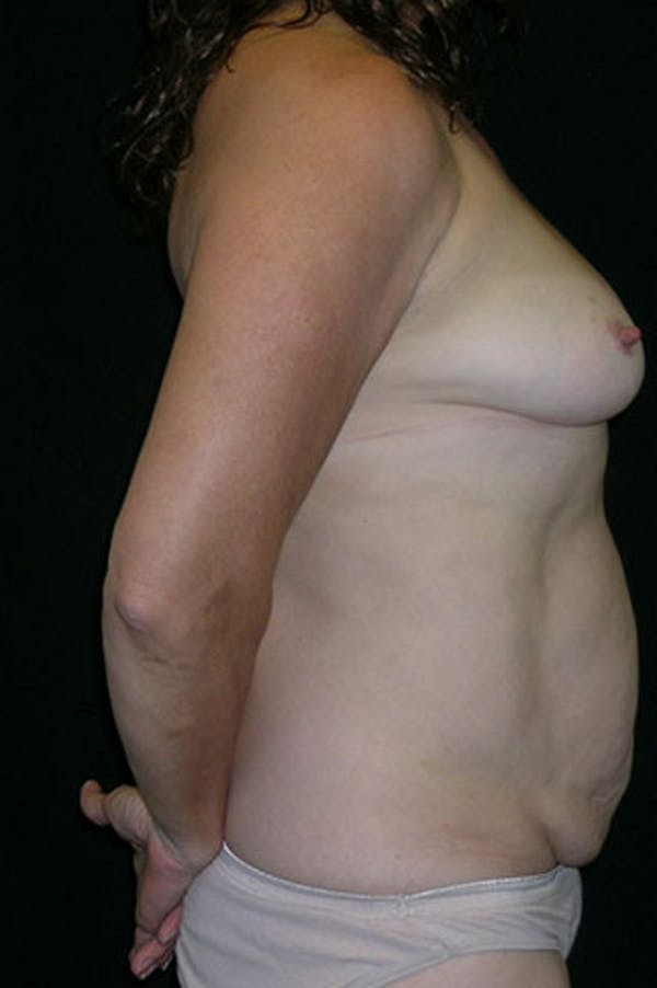 Mommy Makeover Gallery - Patient 23533994 - Image 3
