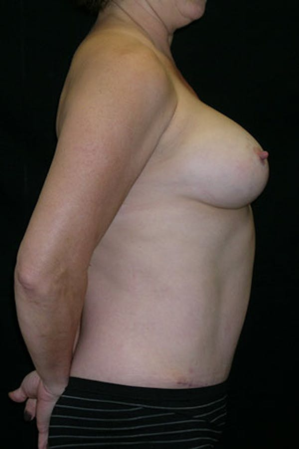 Mommy Makeover Gallery - Patient 23533994 - Image 4