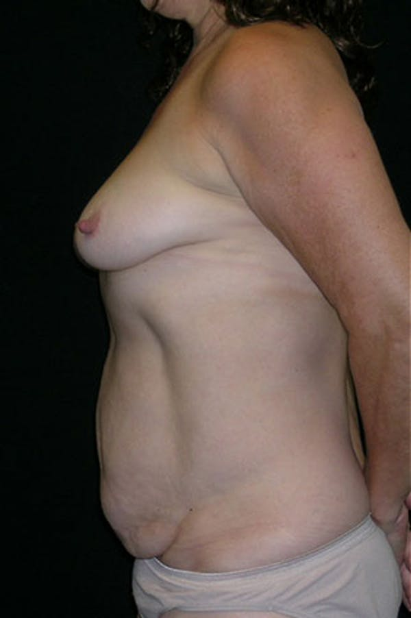Mommy Makeover Gallery - Patient 23533994 - Image 5
