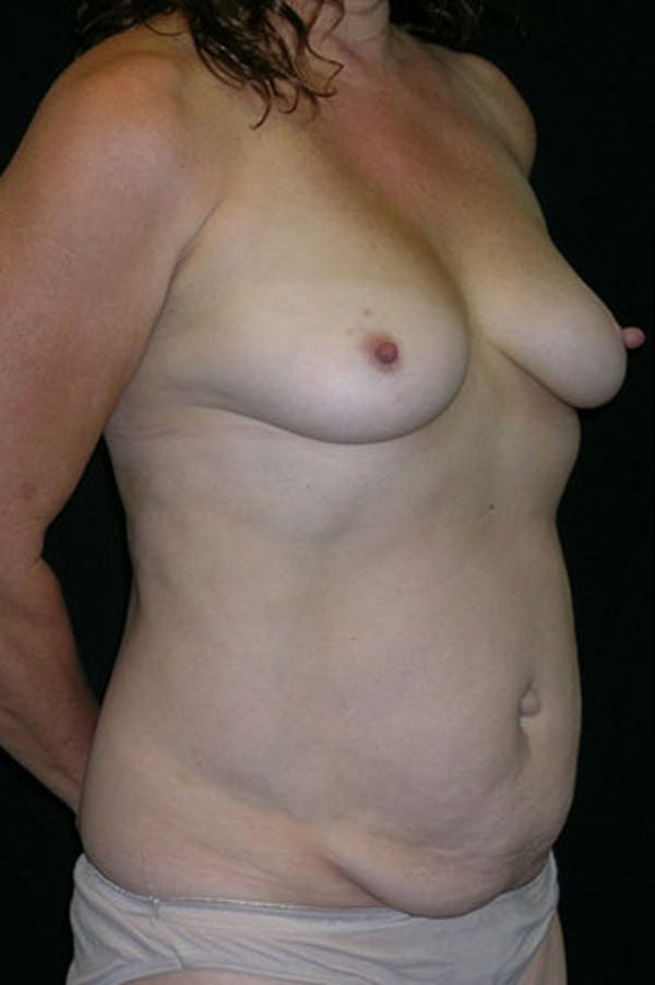 Mommy Makeover Gallery - Patient 23533994 - Image 7