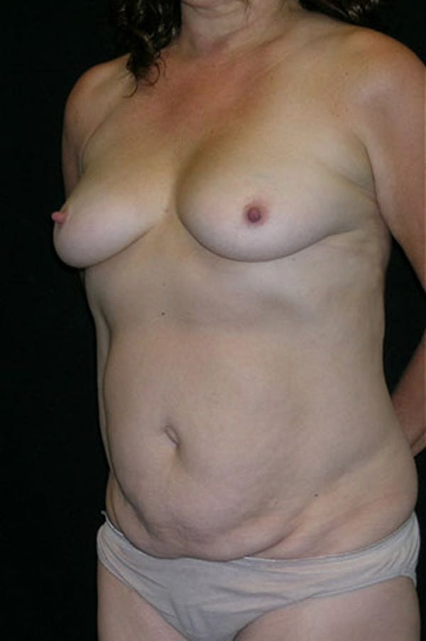 Mommy Makeover Gallery - Patient 23533994 - Image 9