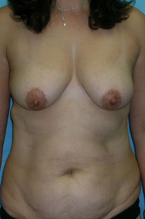 Mommy Makeover Gallery - Patient 23534001 - Image 1