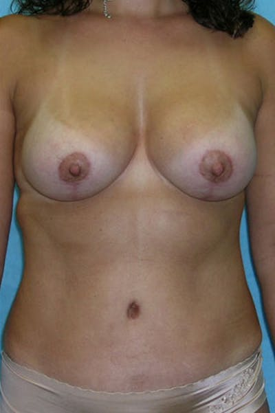Mommy Makeover Gallery - Patient 23534001 - Image 2