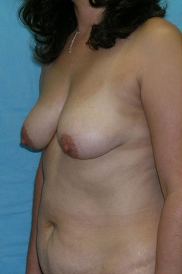 Mommy Makeover Gallery - Patient 23534001 - Image 3