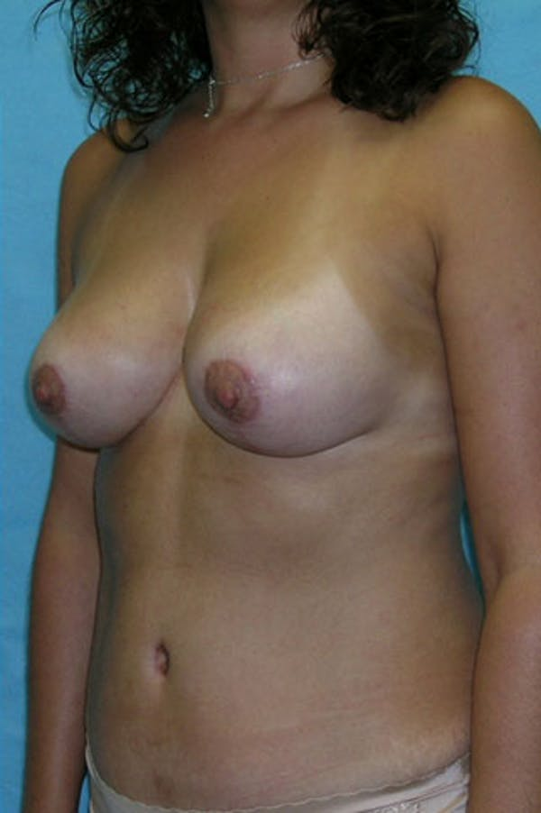 Mommy Makeover Gallery - Patient 23534001 - Image 4