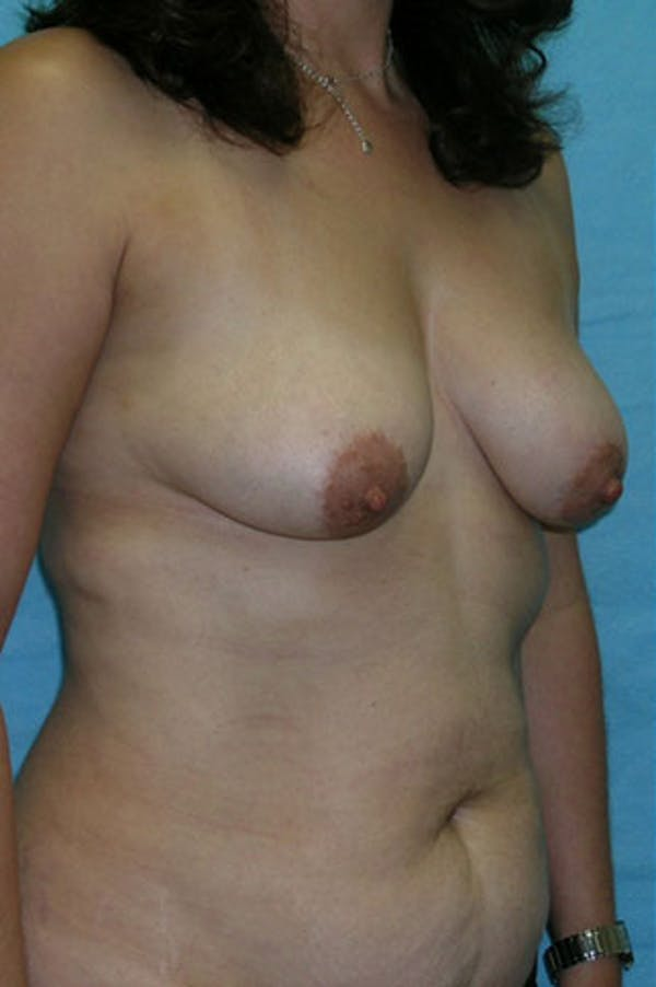 Mommy Makeover Gallery - Patient 23534001 - Image 5