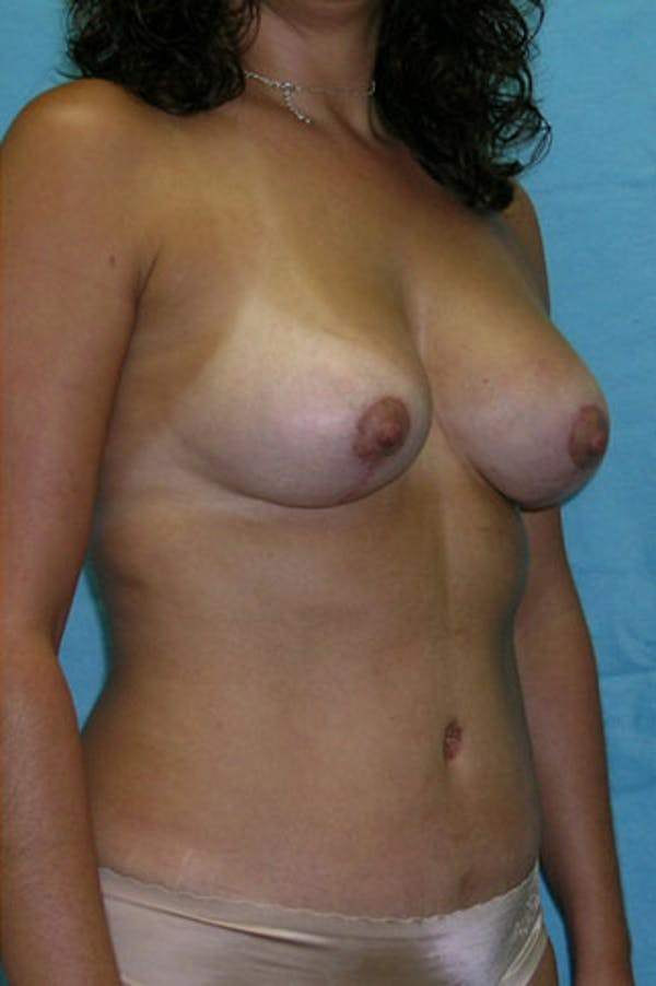 Mommy Makeover Gallery - Patient 23534001 - Image 6
