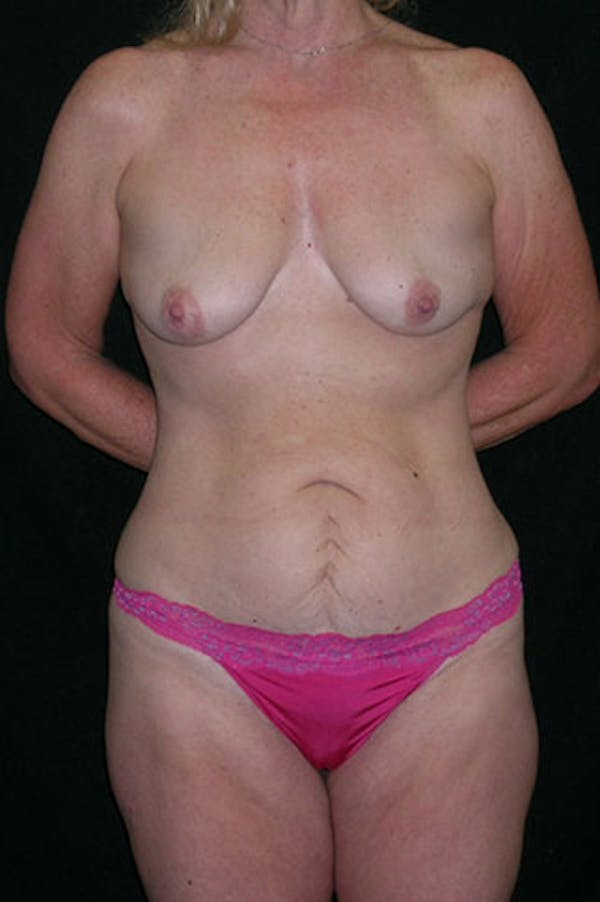 Mommy Makeover Gallery - Patient 23534016 - Image 1