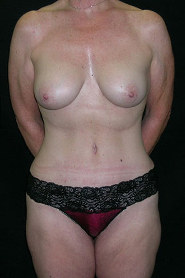 Mommy Makeover Gallery - Patient 23534016 - Image 2