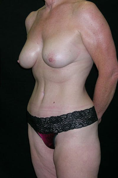Mommy Makeover Gallery - Patient 23534016 - Image 4