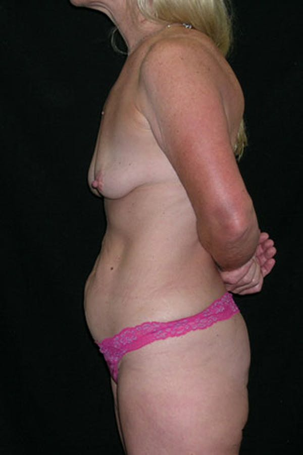Mommy Makeover Gallery - Patient 23534016 - Image 5