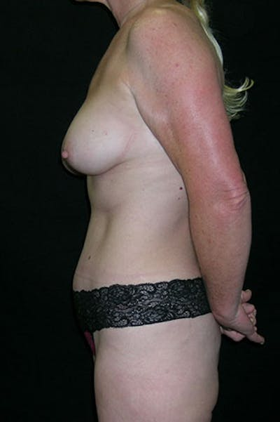Mommy Makeover Gallery - Patient 23534016 - Image 6