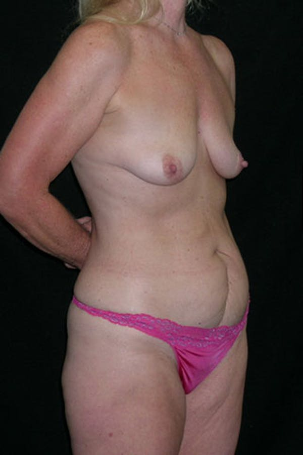 Mommy Makeover Gallery - Patient 23534016 - Image 7