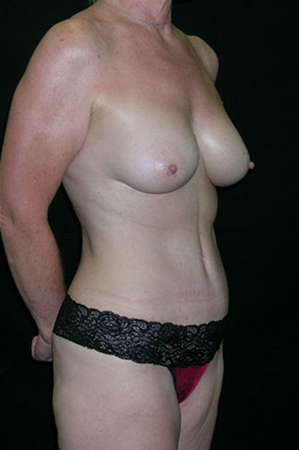 Mommy Makeover Gallery - Patient 23534016 - Image 8