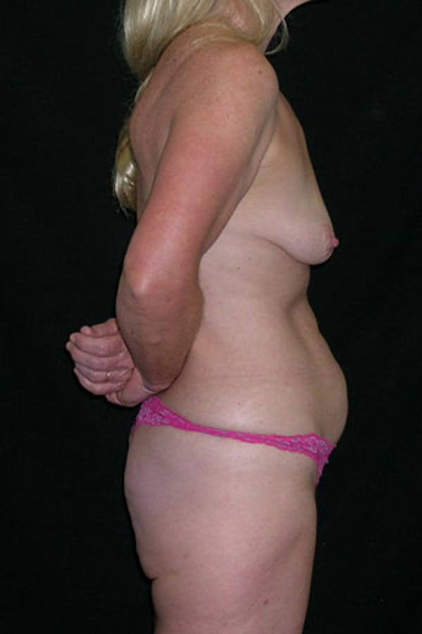 Mommy Makeover Gallery - Patient 23534016 - Image 9