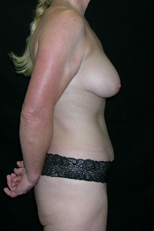 Mommy Makeover Gallery - Patient 23534016 - Image 10