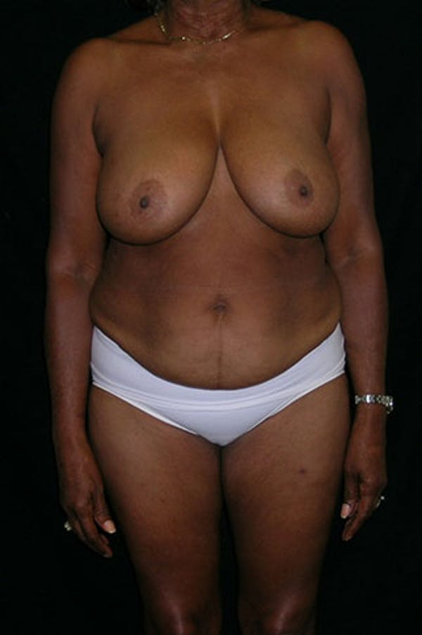 Mommy Makeover Gallery - Patient 23534017 - Image 1