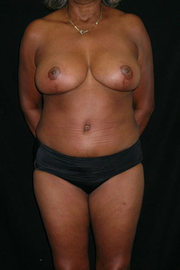 Mommy Makeover Gallery - Patient 23534017 - Image 2
